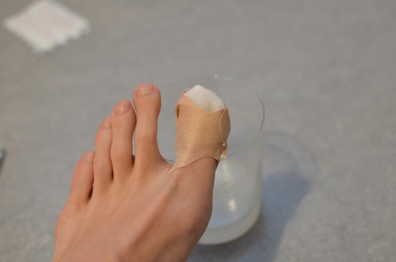 Chodidlo s ošeteným prstem. Prst je zabalen do tampónku a oblepen náplastí. V pozadí je sklenice s roztokem.