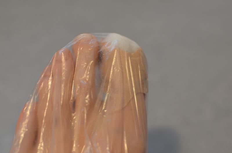 Noha s ošetřeným prstem zabalena v sáčku.